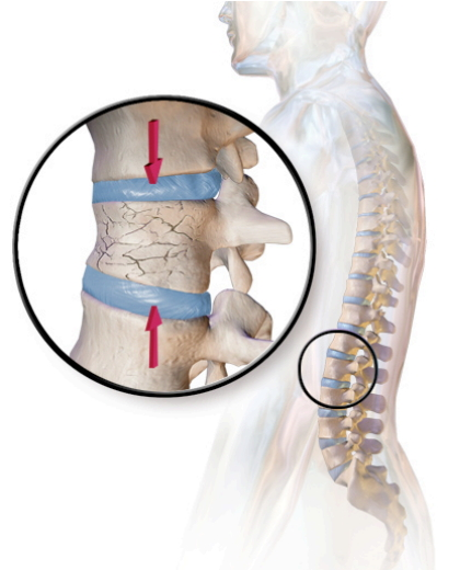 an overview of the danger of spinal injuries Learn about risk factors that can increase your chance of developing spinal stenosis  common stenosis risk factors are activities  spinal stenosis overview.