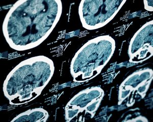 Traumatic brain injury scan